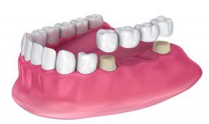 graphic of a dental bridge
